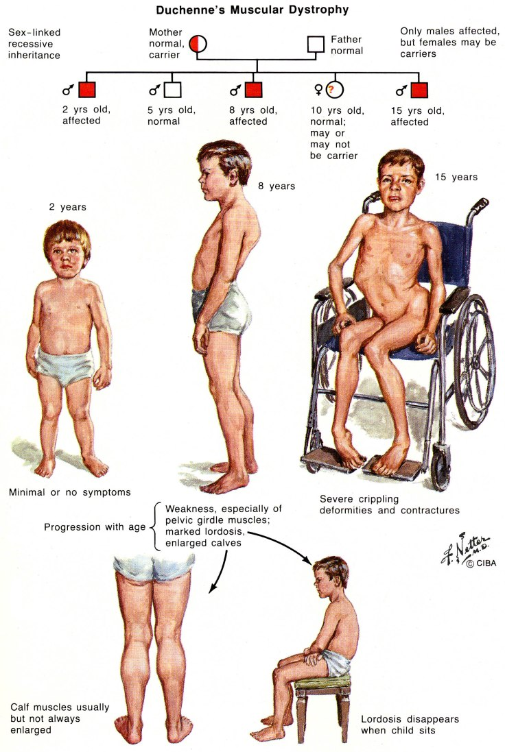 mus5a-duchenne-muscular-dystrophy-1