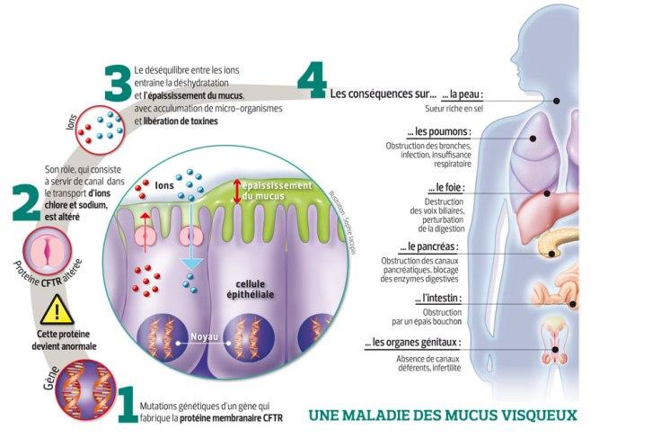 sante-201116-mucoviscidose-karim-grande
